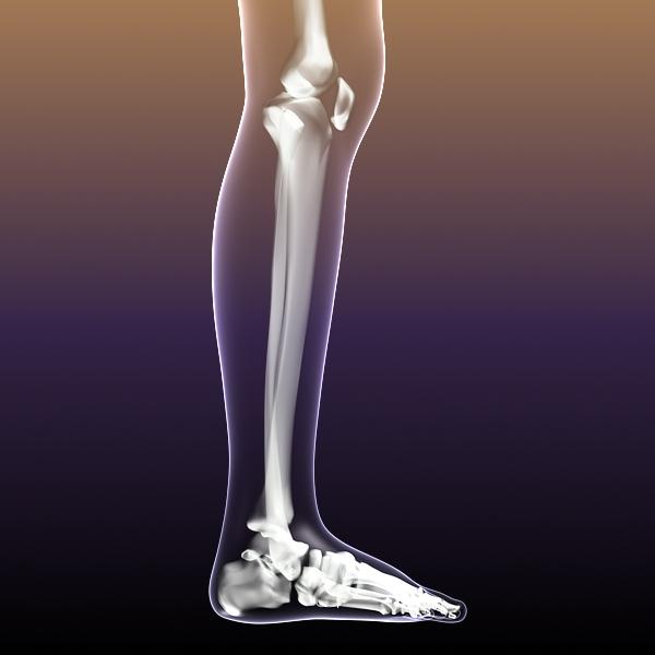 Female Skeleton inside Woman Body ( 117.46KB jpg by 5starsModels )