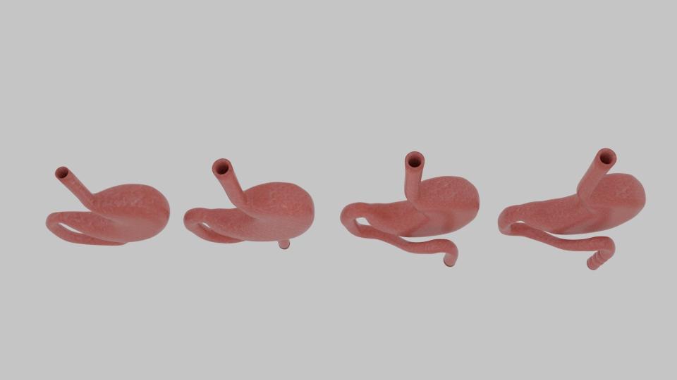 Curve Stomach ( 65.29KB jpg by banism24 )