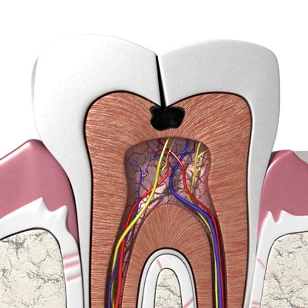 3D Model Cracked Tooth High Detail ( 77.36KB jpg by VKModels )