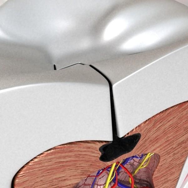 3D Model Cracked Tooth High Detail ( 64.56KB jpg by VKModels )