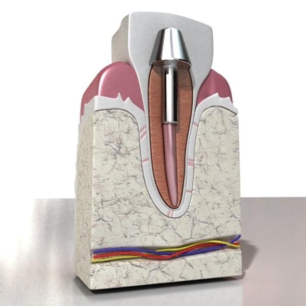 3D Model Dental Implant ( 53.84KB jpg by VKModels )