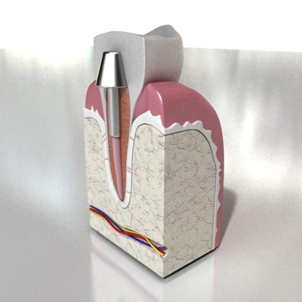 3D Model Dental Implant ( 50.4KB jpg by VKModels )