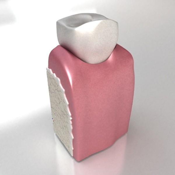 3D Model Dental Implant ( 32.74KB jpg by VKModels )