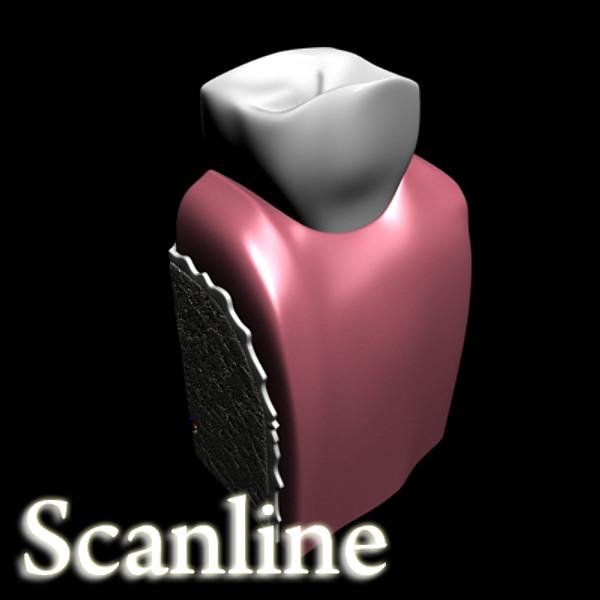 3D Model Dental Implant ( 36KB jpg by VKModels )