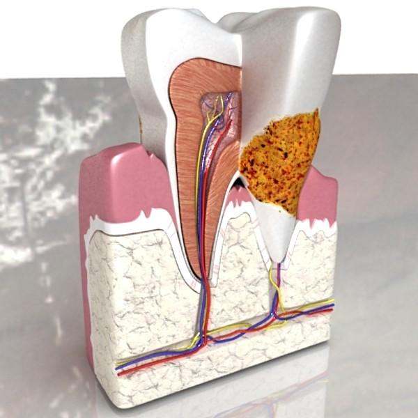 3D Model Tooth Dental Plaque High Detail ( 68.7KB jpg by VKModels )