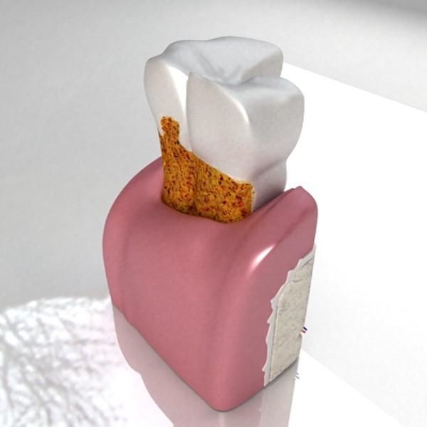 3D Model Tooth Dental Plaque High Detail ( 38.42KB jpg by VKModels )