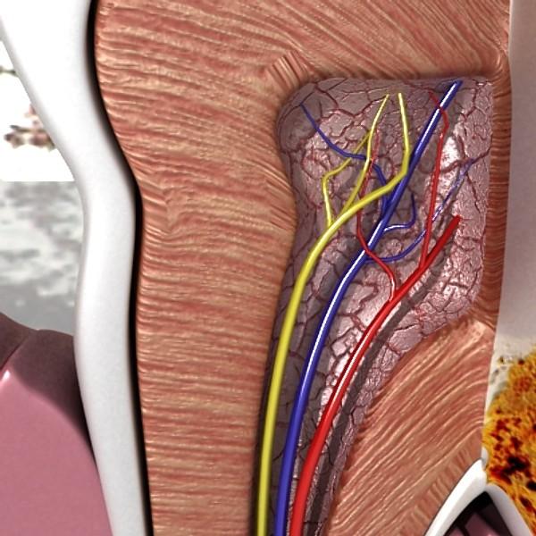 3D Model Tooth Dental Plaque High Detail ( 100.42KB jpg by VKModels )