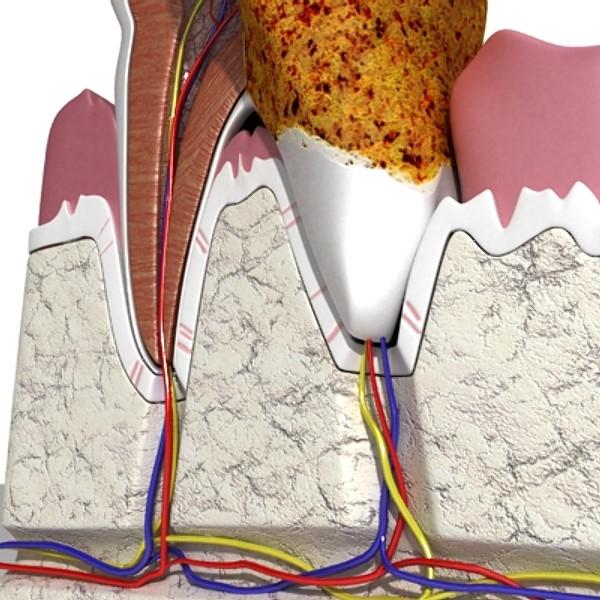 3D Model Tooth Dental Plaque High Detail ( 110.33KB jpg by VKModels )