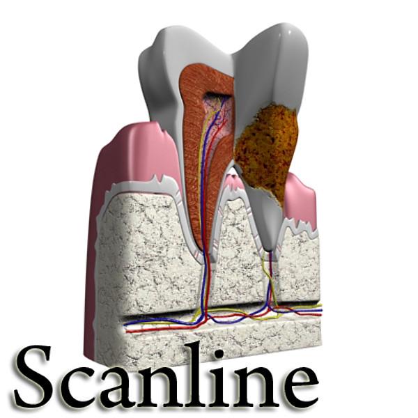 3D Model Tooth Dental Plaque High Detail ( 76.79KB jpg by VKModels )