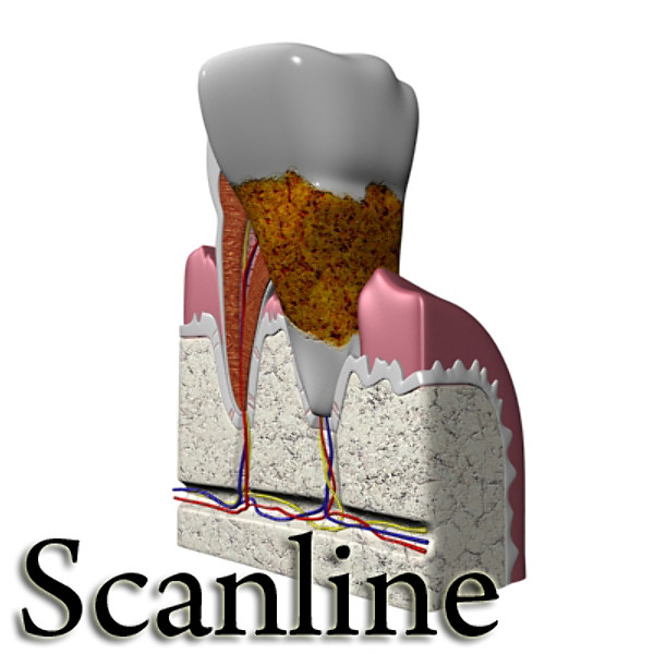 3D Model Tooth Dental Plaque High Detail ( 67.45KB jpg by VKModels )