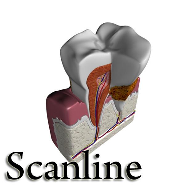 3D Model Tooth Dental Plaque High Detail ( 50.99KB jpg by VKModels )