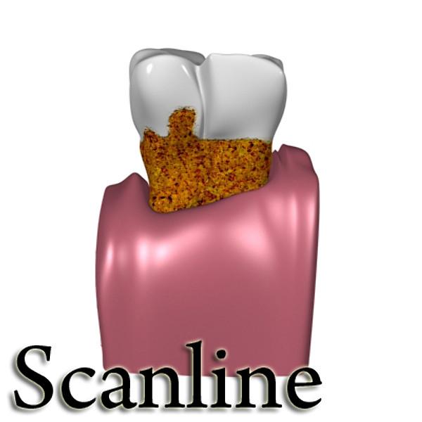3D Model Tooth Dental Plaque High Detail ( 46.44KB jpg by VKModels )