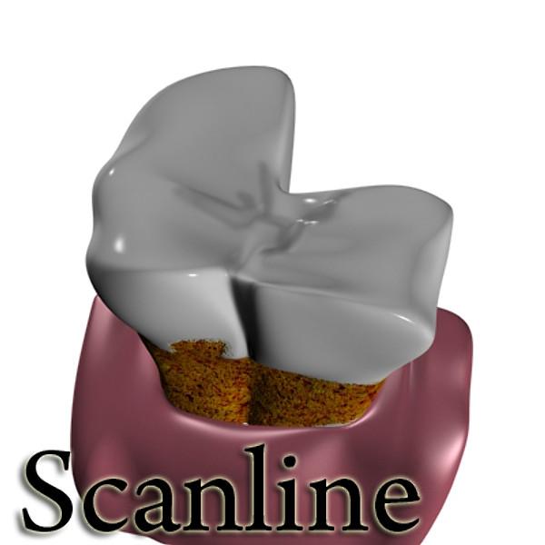 3D Model Tooth Dental Plaque High Detail ( 46.92KB jpg by VKModels )