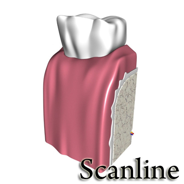 cracked tooth 3d model 3ds max fbx obj 130045