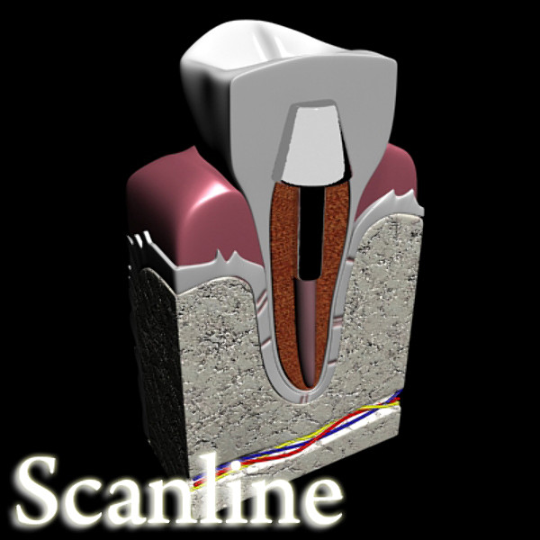 dental implant 3d model 3ds max fbx obj 130032