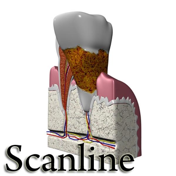 diş diş plakası yüksək ətraflı 3d modeli 3ds max fbx obj 130070