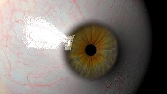 Eyeball ( 108KB jpg by StanleyMedia )