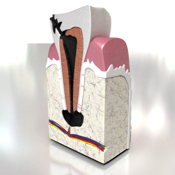 3D Model Decayed Tooth ( 52KB jpg by VKModels )