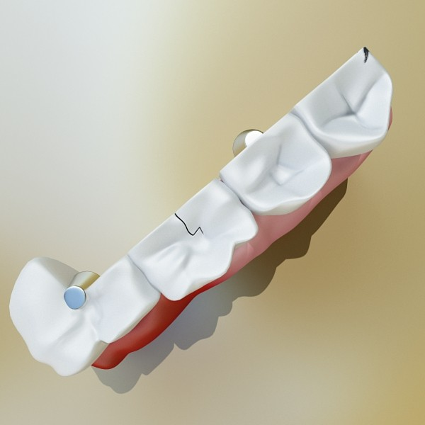 3D Model Teeth High Detail ( 32.01KB jpg by VKModels )