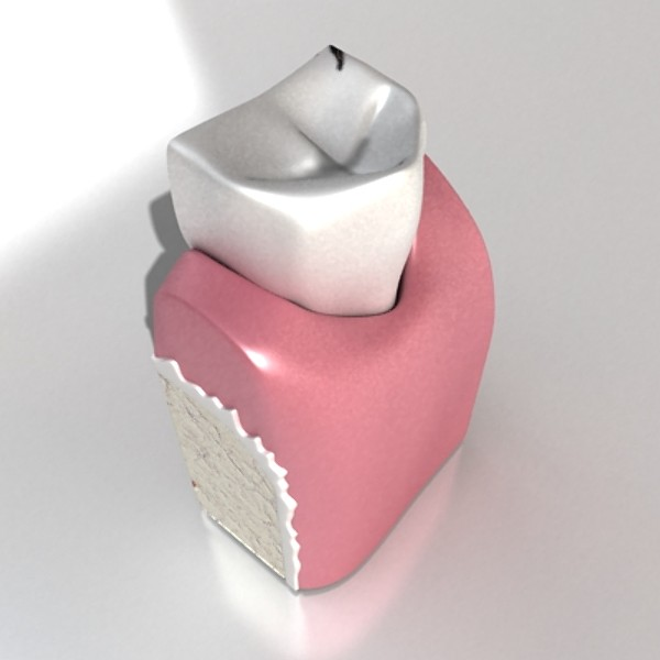 decayed tooth 3d model 3ds max fbx obj 130009