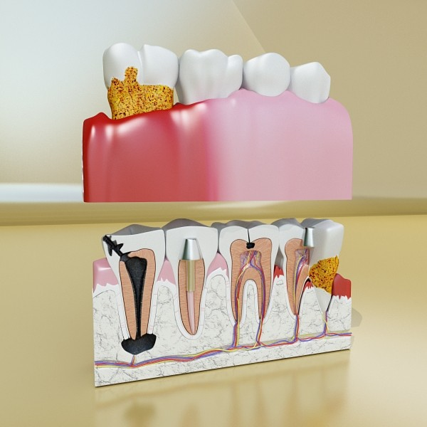 teeth high detail 3d model 3ds max fbx obj 129990